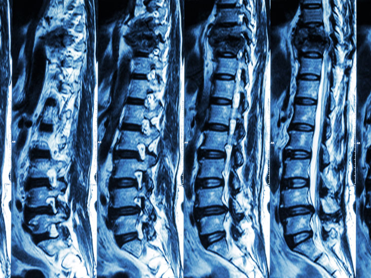 CT scan of a spine